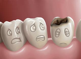 caries nos dentes